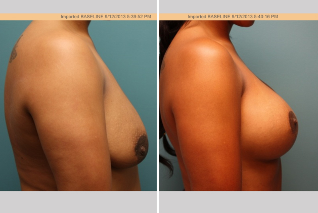 Top Breast Augmentation Surgeons in Chicago - Dr