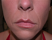 Lip Enhancement | Lip Augmentation | JUVÉDERM® | Silikon 1000 | Chicago IL | Vernon Hills IL