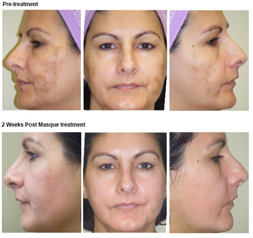 SkinTyte™ | Melasma Treatment | Chicago IL | Vernon Hills IL