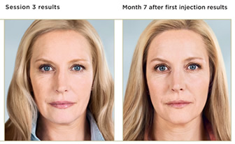 Injectable Facial Fillers | Juvéderm® | Radiesse™ | Restylane® | Chicago IL | Vernon Hills IL