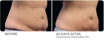 CoolSculpting™ | Thermage® | VaserShape | Viora Reaction™ | Chicago IL | Vernon Hills IL