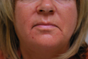 Skin Fitness Cosmetic   Light Treatment   Ultherapy Treatment   Chicago IL   Vernon Hills IL