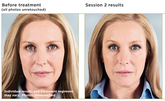Injectable Facial Fillers | Juvéderm<sup></noscript>®</sup> | Radiesse<sup>®</sup>™ | Restylane<sup>®</sup> | Chicago IL | Vernon Hills IL