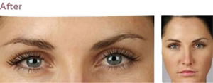 BOTOX® Cosmetic   Dysport Injections   Chicago IL   Vernon Hills IL
