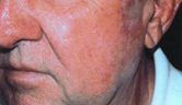 Port Wine Stain Treatment | Rosacea Treatment | Chicago IL | Vernon Hills IL