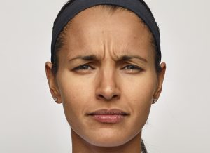botox alternatives dysport before