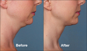 kybella double chin reduction chicago