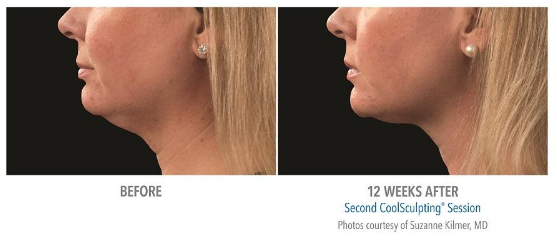 coolsculpting for double chin with coolmini