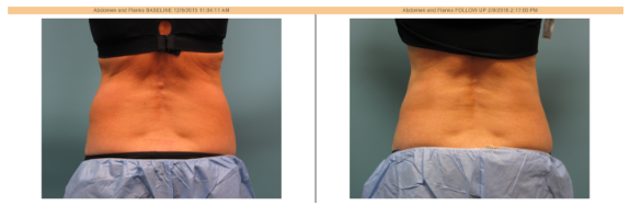 coolsculpting for arms abs and more