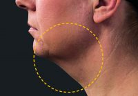coolmini double chin before treatment
