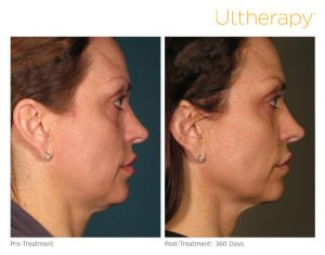 ultherapy double chin and neck rejuvenation
