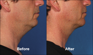 double chin causes and solutions - Kybella Chicago