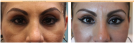 eye rejuvenation younger looking eyes