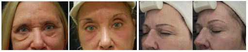 laser eye rejuvenation chicago