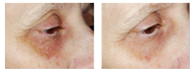 chemical peel for eyes
