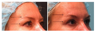 chicago Ultherapy eye rejuvenation