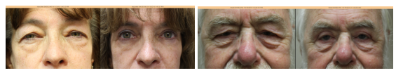 get younger looking eyes with blepharoplasty chicago
