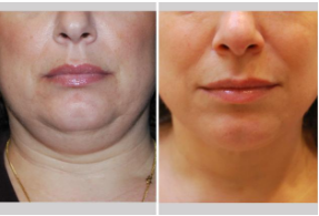 chicago liposuction for double chin