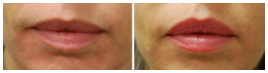 lip enhancement options north chicago