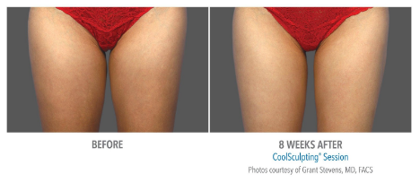 thigh gap coolsculpting before and after