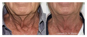 non-surgical neck rejuvenation with Fractora