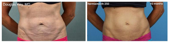 radiofrequency skin tightening with thermirf