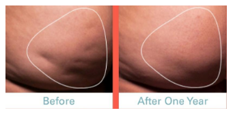 cellulite reduction cellfina before and after