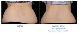 non surgical body sculpting with coolsculpting