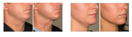 ultherapy procedure before and after photos