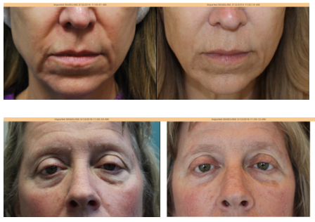 dermal fillers top non-surgical cosmetic treatments in north chicago