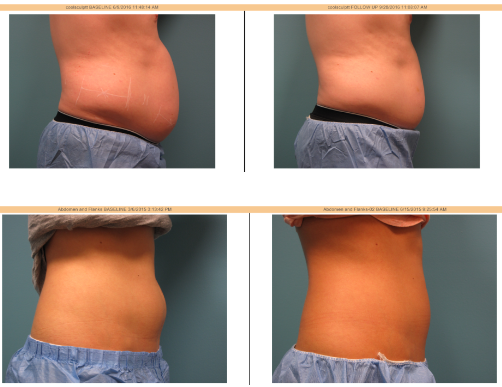 north chicago coolsculpting before and after