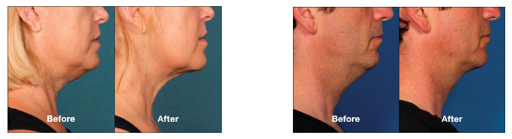 kybella double chin reduction for turkey neck