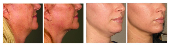 ultherapy turkey neck solution