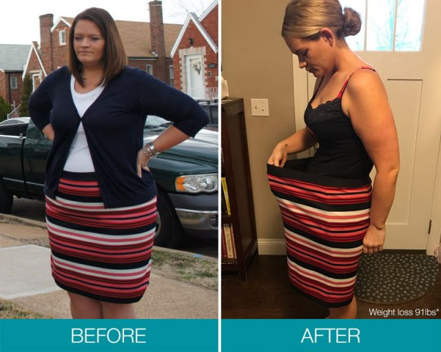 Obalon Vernon Hills Top Choice For Nonsurgical Weight Loss At Ritacca